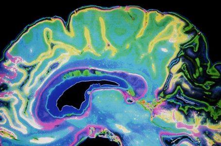 """Experto afirma que """"es probable que en un futuro no muy lejano se cuente con un tratamiento equivalente a una cura para el Alzheimer"""""""